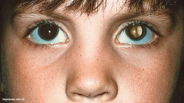 Beberapa Fakta Kanker Mata Dapat Meyerang Orang Dewasa Dan Anak-Anak